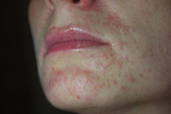 kortykosteroidy do nosa bez recepty