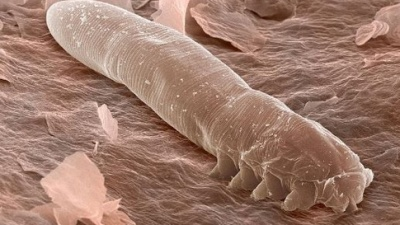 demodex-mikroskop
